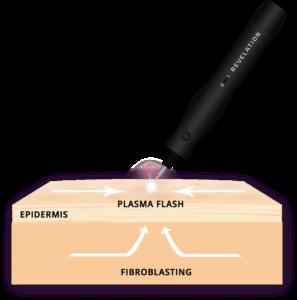 fibroblast-services